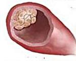 Инвазивный рак молочной железы: симптомы протоковой карциномы, лечение, прогноз