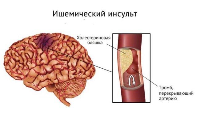 Обширный инсульт: причины, последствия и шансы выжить, лечение и прогноз
