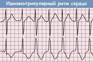 Асистолия: что это такое, причины симптомы и первая помощь