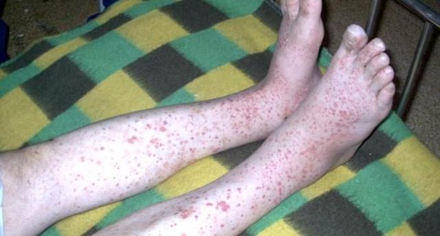 Геморрагический синдром: что это такое, симптомы, диагностика и лечение