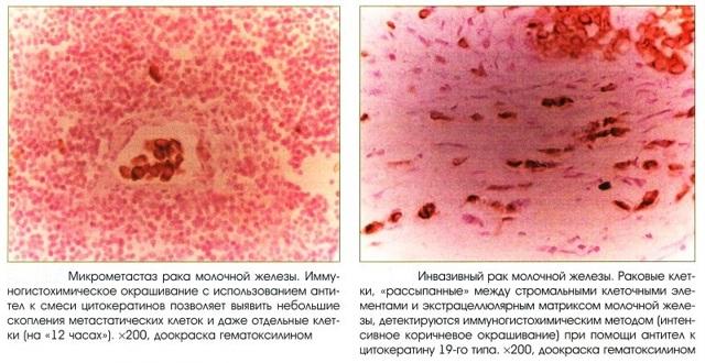 Иммуногистохимическое исследование молочной железы: что это такое, расшифровка анализов