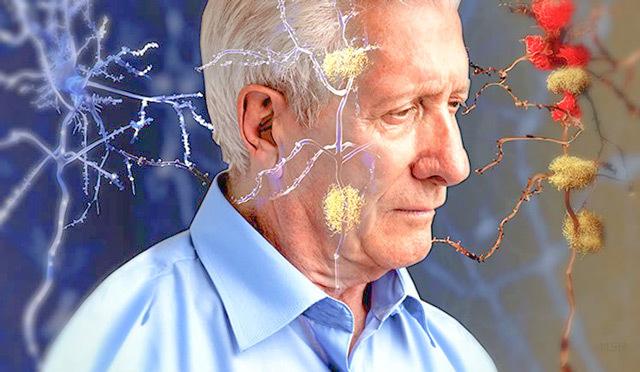 Нарушение мозгового кровообращения (НМК): симптомы и лечение, причины и признаки