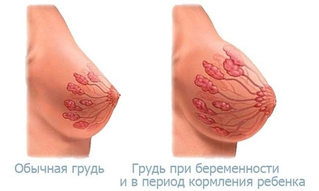 Выделения из грудных желез при беременности: что означают, опасно ли, уход за грудью