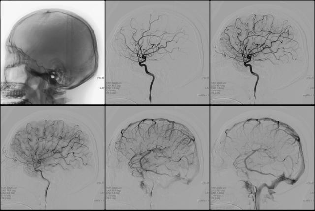 Ангиография сосудов головного мозга: что это такое, как проводится КТ и МР