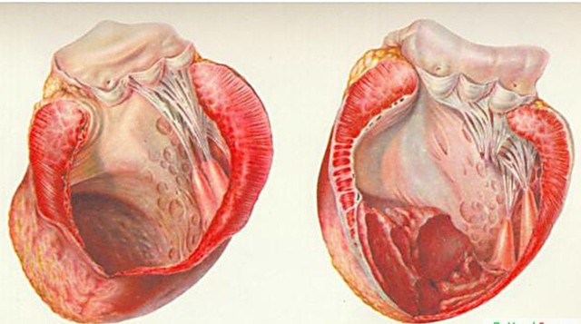 Аневризма МПП (межпредсердной перегородки) у взрослых: что это, симптомы и лечение
