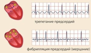Трепетание предсердий на ЭКГ: что это такое, лечение и прогноз жизни
