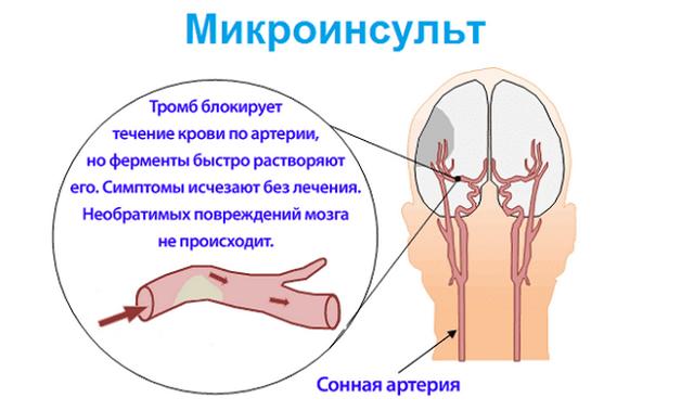 Микроинсульт у женщин: симптомы, первые признаки, как проявляется