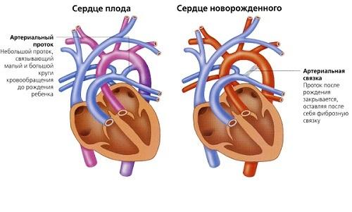 Открытый артериальный проток (ОАП): у детей и новорожденных, симтомы и лечение