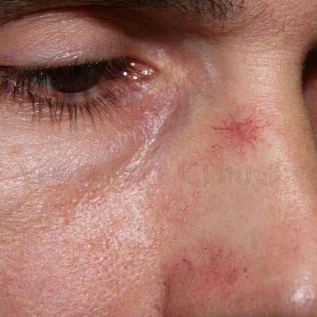 Сосудистые звездочки на лице: причины, удаление и лечение