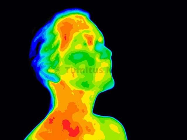 Стеноз сонной артерии: симптомы и признаки, что делать и лечение