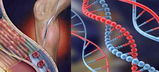 Тромбофилия: что это такое, симптомы, анализы и лечение