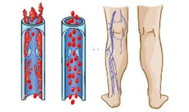 Тромбофлебит: симптомы и признаки, причины и лечение