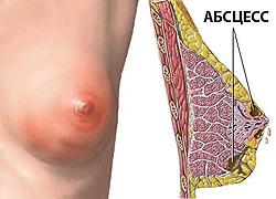 Мастит: симптомы и признаки у женщин, диагностика и эффективное лечение