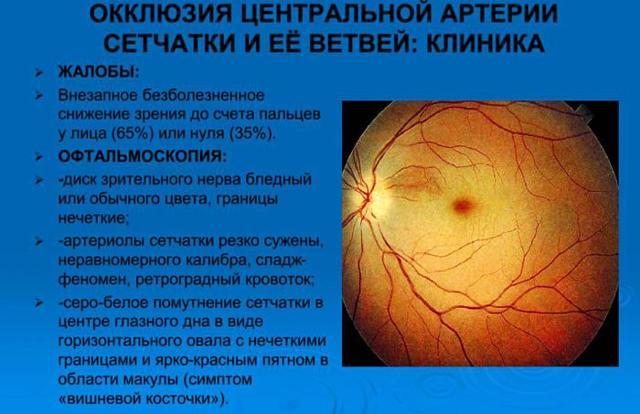 Окклюзия сосудов: что это, симптомы артериальной и венозной, лечение и последствия