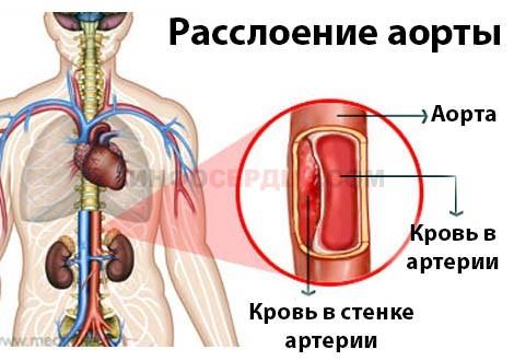 Разрыв сердца: что это такое, причины, симптомы, лечение и прогноз