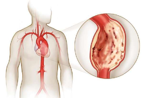 Пролапс митрального клапана (ПМК) 1 степени: что это такое, симптомы и лечение