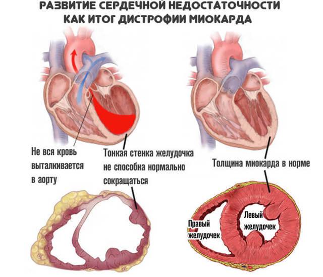 Миокардиодистрофия: что это такое, симптомы и лечение, стадии и формы