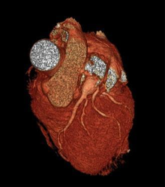 Аневризма сердца: что это такое, насколько это опасно симптомы и лечение