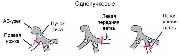 Блокада левой ножки пучка Гиса: что это такое и чем опасно на ЭКГ