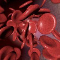 Микроцитоз: что это в общем пнплизе крови, причины, симптомы и лечение