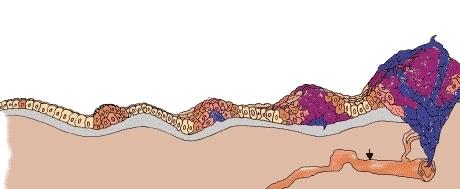 Онкомаркер молочной железы СА 15-3: норма и расшифровка при раке груди