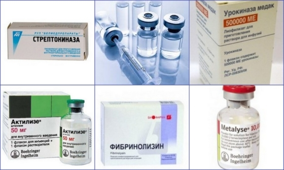 Тромболитики: список препаратов 1, 2, 3 поколений, названия и цены