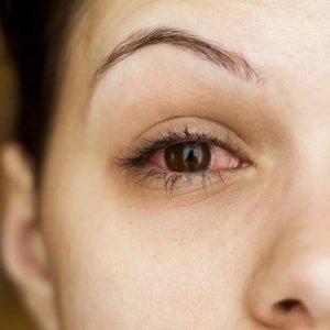 Лопнул сосуд в глазу: 22 причины, что делать и лечение