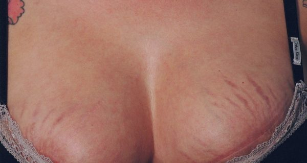 Вены на груди у женщин - причины появления: беременность, стресс, заболевания