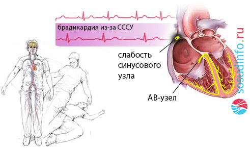 Синоатриальная блокада 1,2,3 степени 1-2 типа: ЭКГ признаки симптомы и лечение