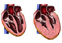 Гипертрофическая кардиомиопатия (ГКМП): диагностика и лечение