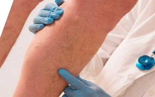 Флеботромбоз: что это, симптомы и признаки, причины и лечение