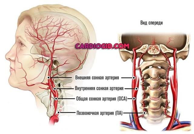 Аневризма сонной артерии: лечение, симптомы и причины