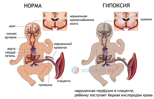 Резидуальная энцефалопатия: что это, симптомы и лечение у детей и взрослых