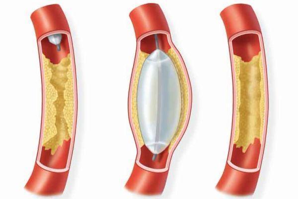 Вариант развития виллизиева круга: что это такое, трифуркация, замкнутый, разомкнутый