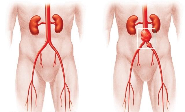 Аневризма брюшной аорты: симптомы, лечение, причины и прогноз жизни
