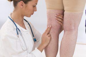 Флебит вен: что это такое, лечение, симптомы и причины