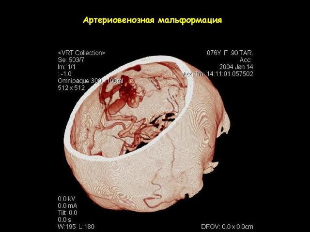 Мальформация сосудов головного мозга: симптомы и лечение операцией