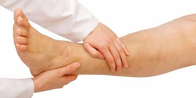 Облитерирующий эндартериит сосудов нижних конечностей: симптомы и лечение