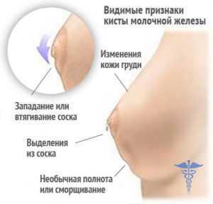 Киста молочной железы: причины возникновения, симптомы, лечение без операции