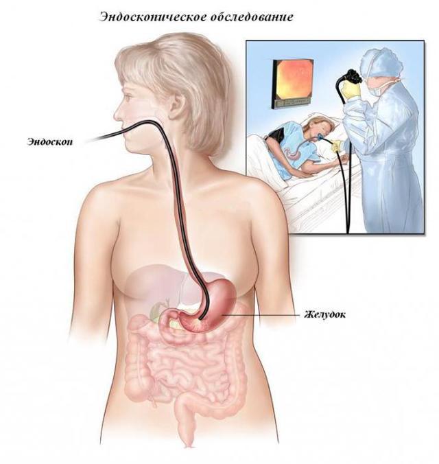 Желудочное кровотечение: симптомы, первая помощь, причины и лечение