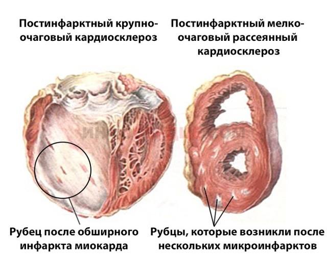 Постинфарктный кардиосклероз: что это такое, причины, симптомы и лечение