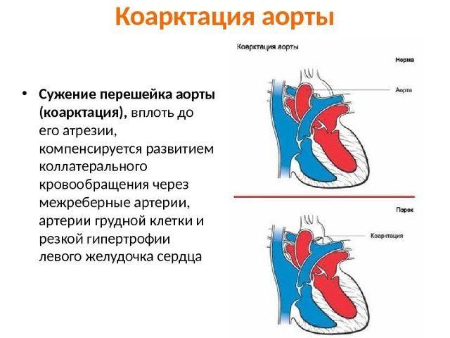 Коарктация аорты у детей и взрослых: симптомы, диагностика и лечение