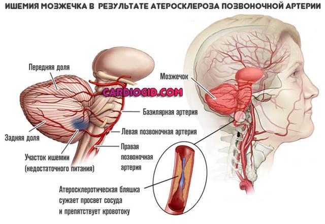 Атеросклероз сосудов головного мозга: симптомы и лечение, последствия