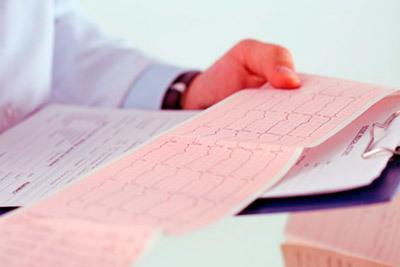 Фибрилляция желудочков сердца: что это такое на экг и неотложная помощь