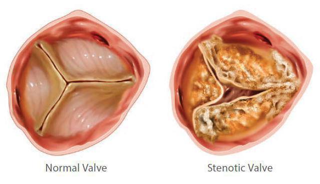 Недостаточность аортального клапана: 1,2,3,4 степени: что это такое, лечение и прогноз