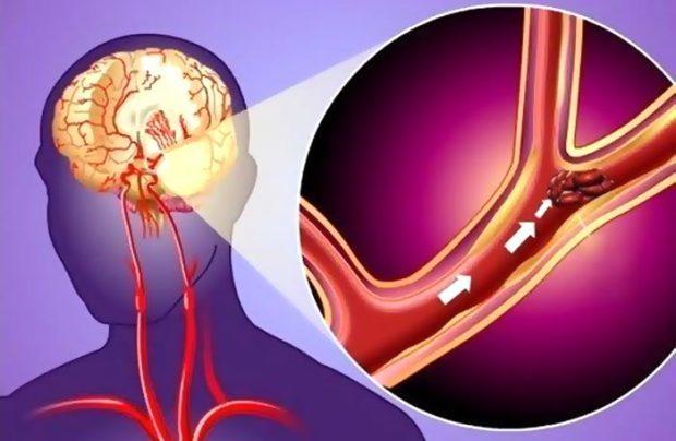 Лечение и восстановление после микроинсульта дома и в стационаре