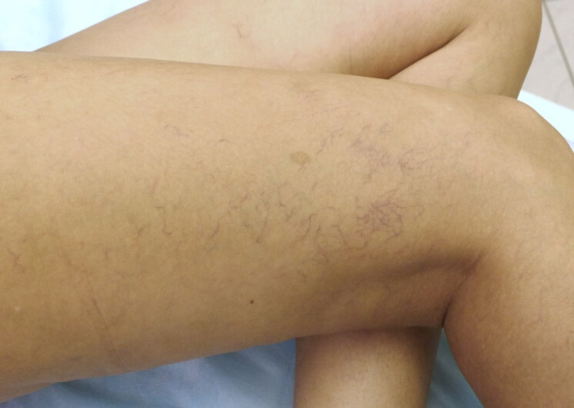 Сосудистые звёздочки на ногах: причины, лечение, фото и как избавиться