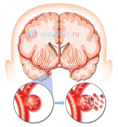 Субарахноидальное кровоизлияние (САК): что это, лечение и последствия