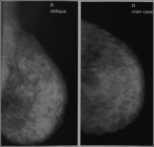 Мастопатия молочной железы - что это: симптомы и признаки, лечение