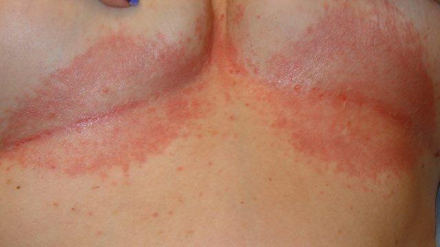 Коричневые пятна на коже груди